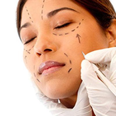 blefaroplastica-soft-surgery-gmv-01b